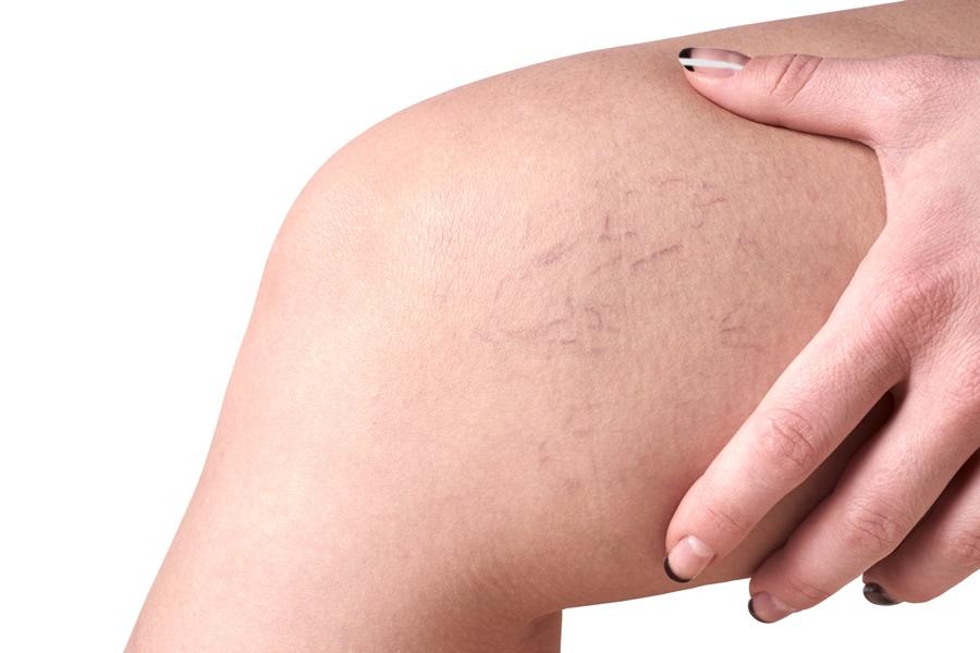 perna com vasinhos (vascular)