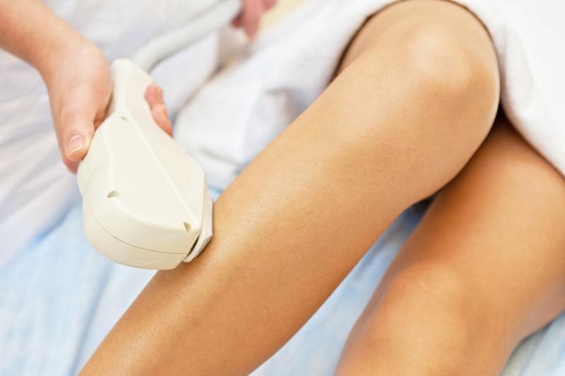 Tratamento das varizes: Como escolher o ideal para você?