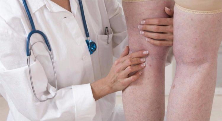 Angiologista X Cirurgião Vascular: Qual a diferença entre os dois?