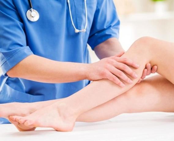 Cirurgia de Varizes: Saiba em quais casos ela é indicada